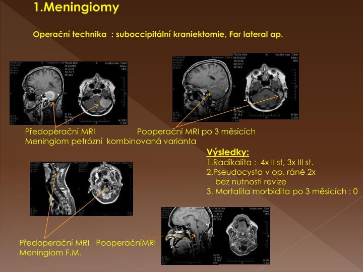 1.Meningiomy