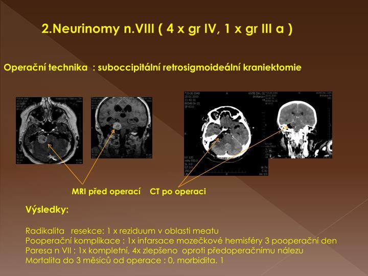2.Neurinomy