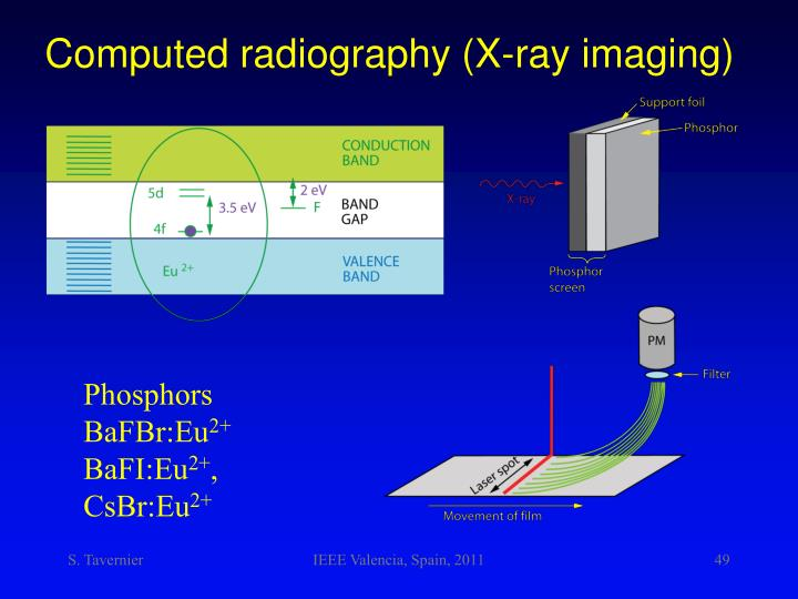 Computed radiography (X-ray imaging)