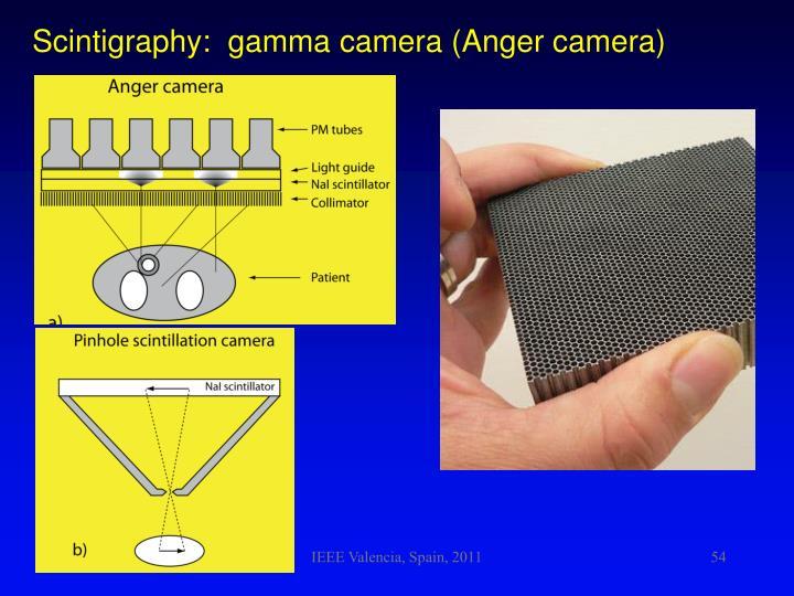 Scintigraphy:  gamma camera (Anger camera)