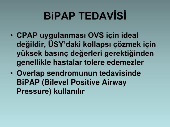 BiPAP TEDAVS