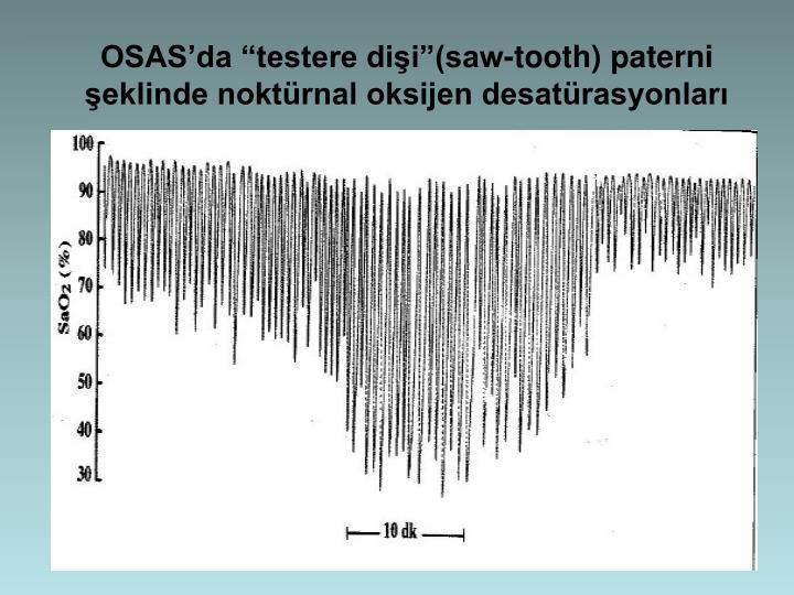 OSASda testere dii(saw-tooth) paterni eklinde noktrnal oksijen desatrasyonlar