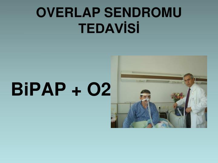OVERLAP SENDROMU TEDAVS