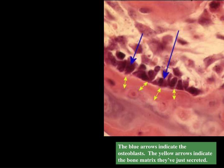 The blue arrows indicate the osteoblasts.  The yellow arrows indicate the bone matrix they've just secreted.