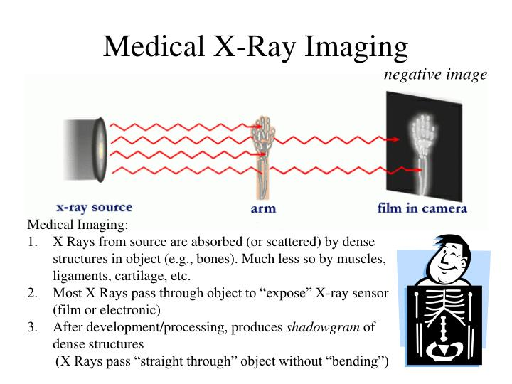 Medical X-Ray Imaging