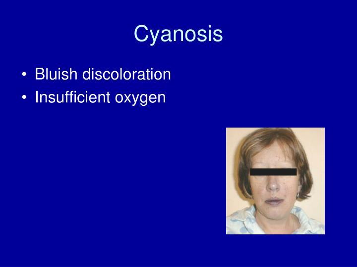 Cyanosis