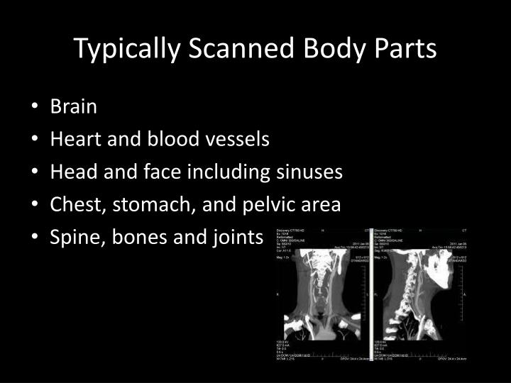 Typically Scanned Body Parts