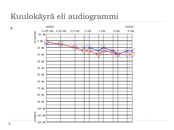Kuulokäyrä eli audiogrammi