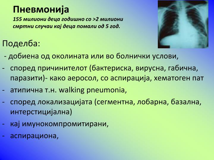 Пневмонија