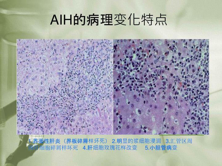 AIH的病理变化特点