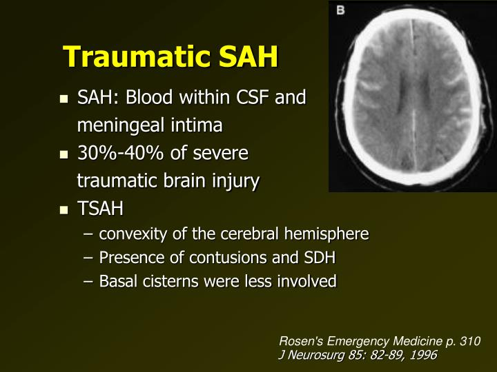 Traumatic SAH