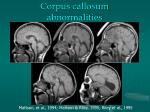 corpus callosum abnormalities