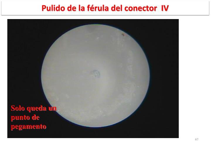 Pulido de la férula del conector  IV