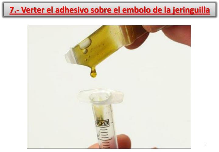 7.- Verter el adhesivo sobre el embolo de la jeringuilla