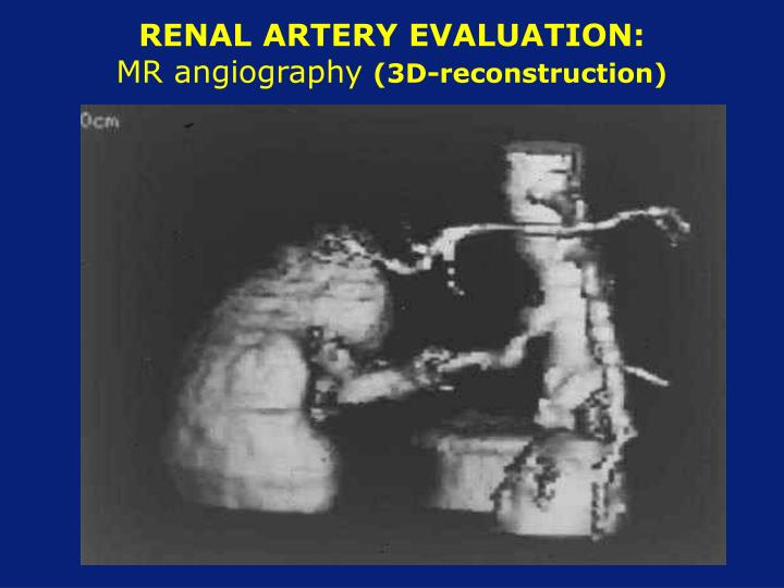 RENAL ARTERY EVALUATION: