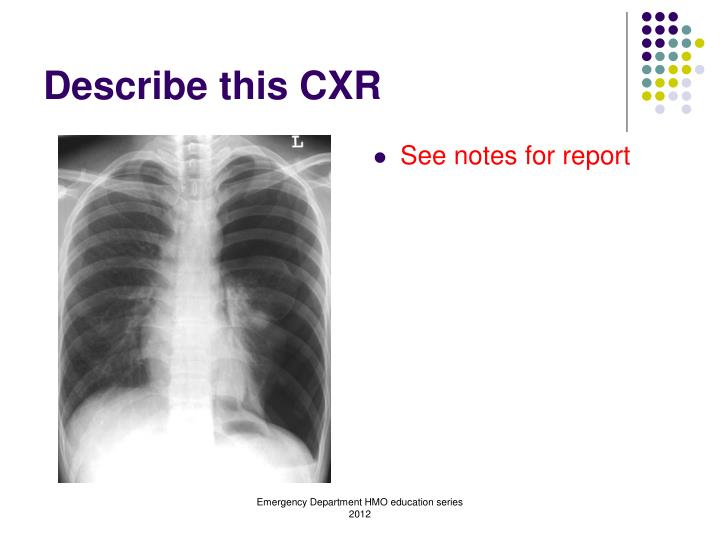 Describe this CXR