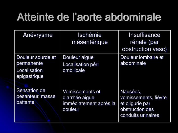 Atteinte de l'aorte abdominale