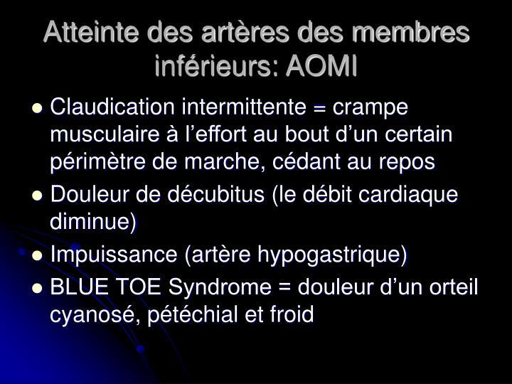 Atteinte des artères des membres inférieurs: AOMI