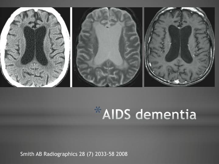 AIDS dementia