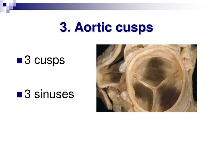 3. Aortic cusps