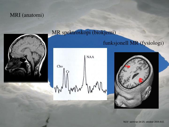 MRI (anatomi)