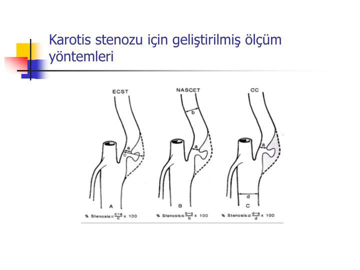 Karotis stenozu iin gelitirilmi lm yntemleri