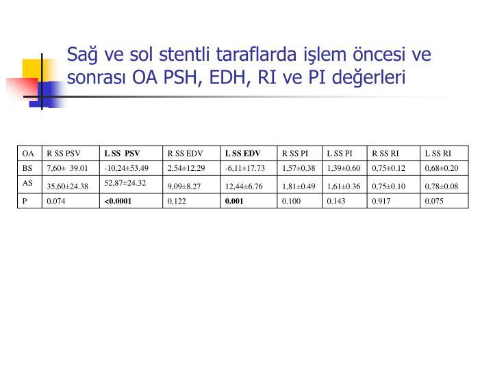 Sa ve sol stentli taraflarda ilem ncesi ve sonras OA PSH, EDH, RI ve PI deerleri