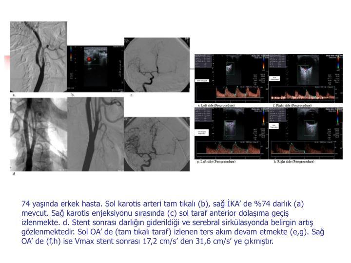 74 yanda erkek hasta. Sol karotis arteri tam tkal (b), sa KA de %74 darlk (a) mevcut. Sa karotis enjeksiyonu srasnda (c) sol taraf anterior dolama gei izlenmekte. d. Stent sonras darln giderildii ve serebral sirklasyonda belirgin art gzlenmektedir. Sol OA de (tam tkal taraf) izlenen ters akm devam etmekte (e,g). Sa OA de (f,h) ise Vmax stent sonras 17,2 cm/s den 31,6 cm/s ye kmtr.