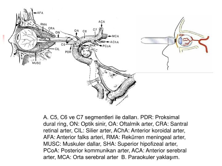 A. C5, C6 ve C7 segmentleri ile dallar. PDR: Proksimal dural ring, ON: Optik sinir, OA: Oftalmik arter, CRA: Santral retinal arter, CIL: Silier arter, AChA: Anterior koroidal arter, AFA: Anterior falks arteri, RMA: Rekrren meningeal arter, MUSC: Muskuler dallar, SHA: Superior hipofizeal arter, PCoA: Posterior kommunikan arter, ACA: Anterior serebral arter, MCA: Orta serebral arter  B. Paraokuler yaklam.