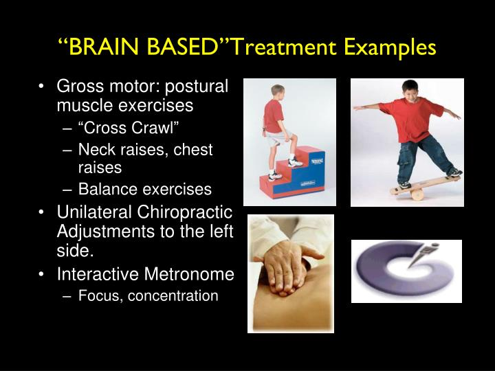 """BRAIN BASED""Treatment Examples"