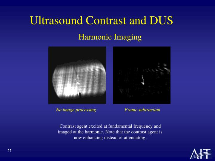 Ultrasound Contrast and DUS