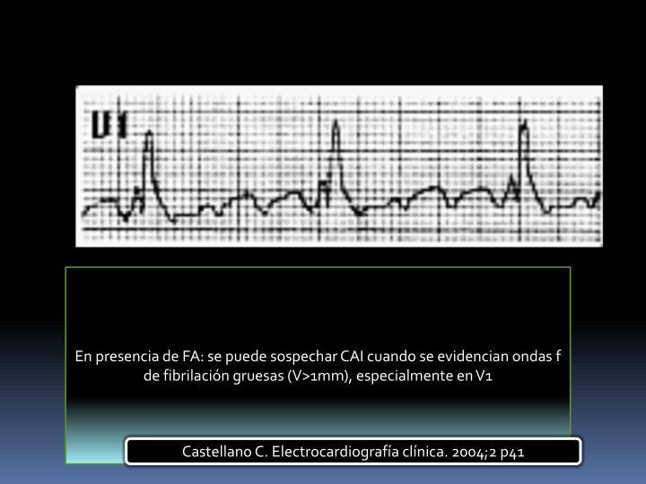En presencia de FA: se puede sospechar CAI cuando se evidencian ondas f de fibrilación gruesas (V>1mm), especialmente en V1