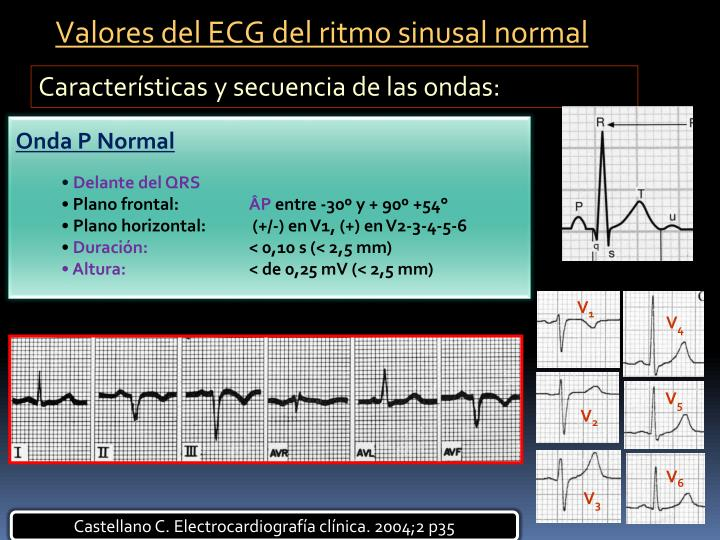 Valores del ECG del ritmo sinusal normal