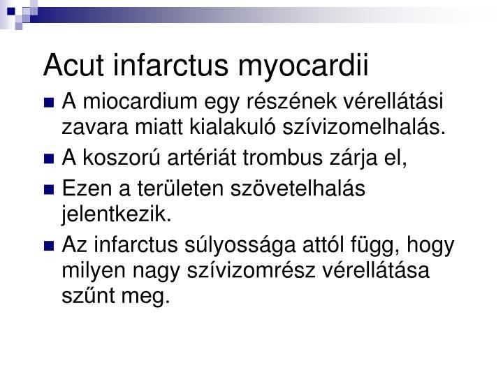 Acut infarctus myocardii