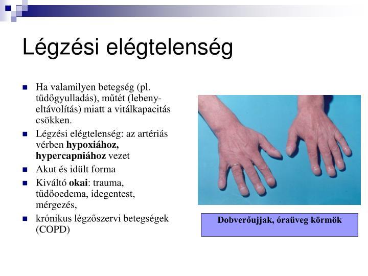 Ha valamilyen betegsg (pl. tdgyullads), mtt (lebeny-eltvolts) miatt a vitlkapacits cskken.