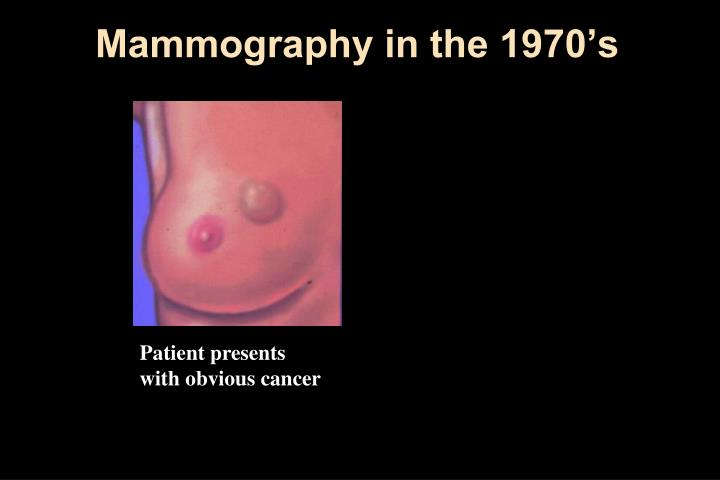 Mammography in the 1970's
