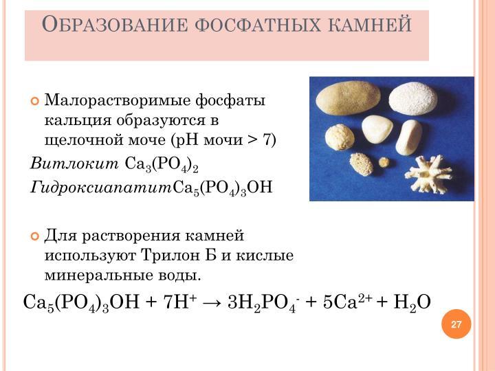 Образование фосфатных камней