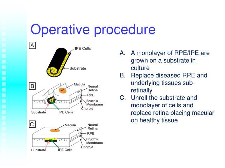 Operative procedure