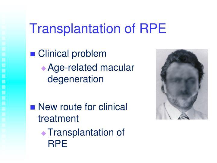 Transplantation of RPE