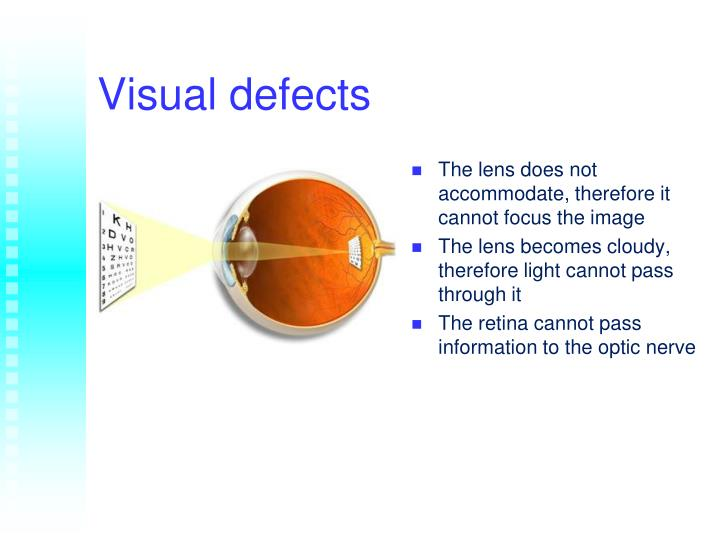 Visual defects