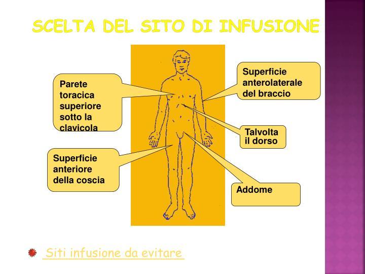 Scelta del sito di infusione