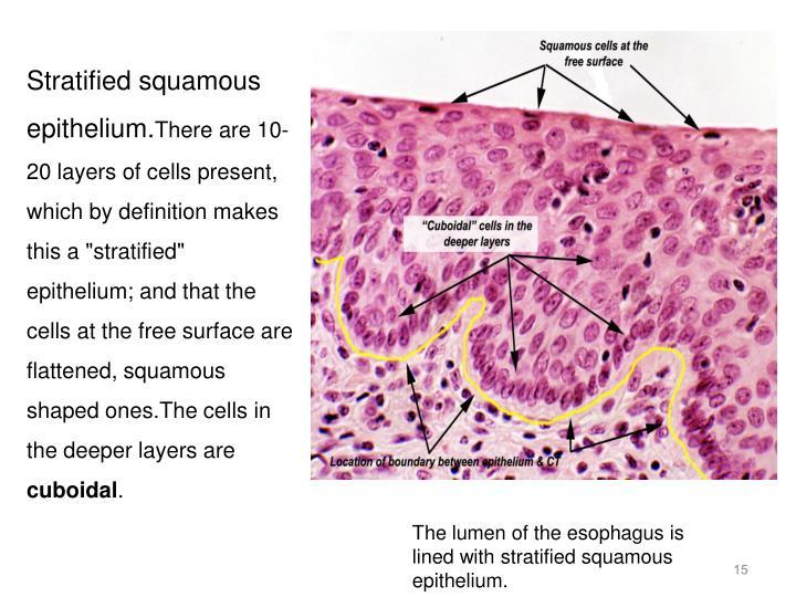 Stratified squamous epithelium.