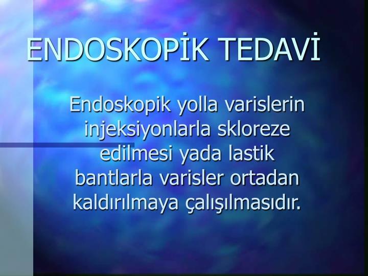 ENDOSKOPİK TEDAVİ