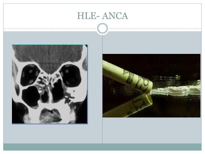 HLE- ANCA