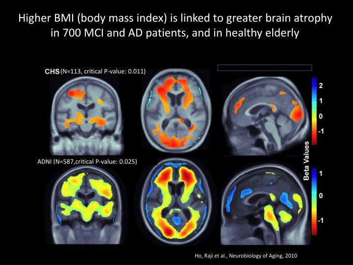 Higher BMI (body mass index) is linked to greater brain atrophy