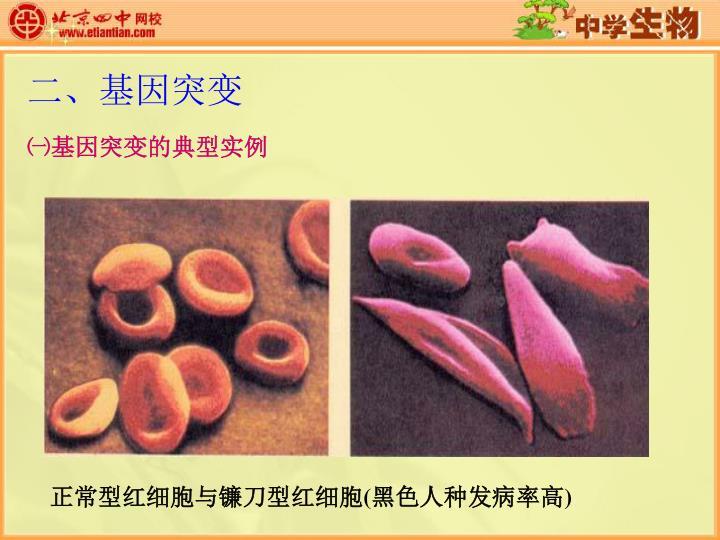 正常型红细胞与镰刀型红细胞