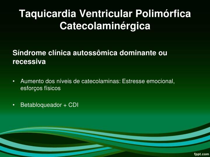 Taquicardia Ventricular Polimórfica Catecolaminérgica