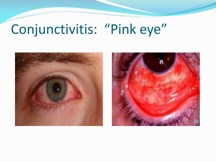 "Conjunctivitis:  ""Pink eye"""