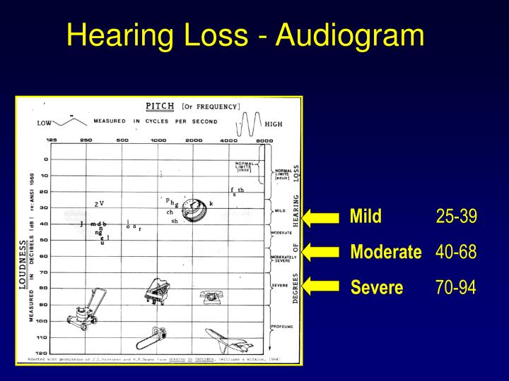 Hearing Loss - Audiogram