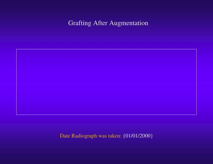 Grafting After Augmentation